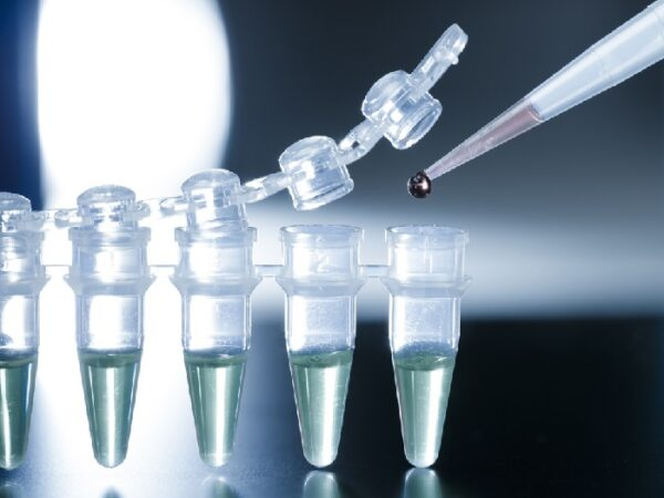 Stem Cell Treatment for Osteoarthritis 1 e1629339523745