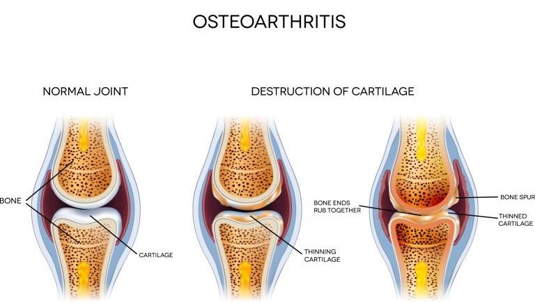 osteoarthritis treatment in joints 1